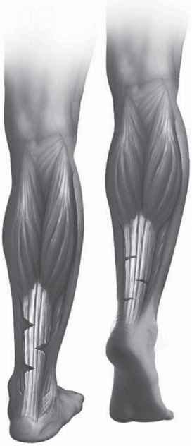 Medial Calf Tightness