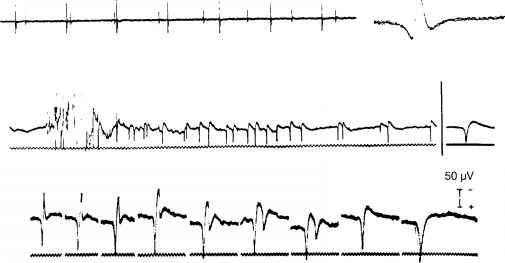 Emg Abnormal Waveforms Image