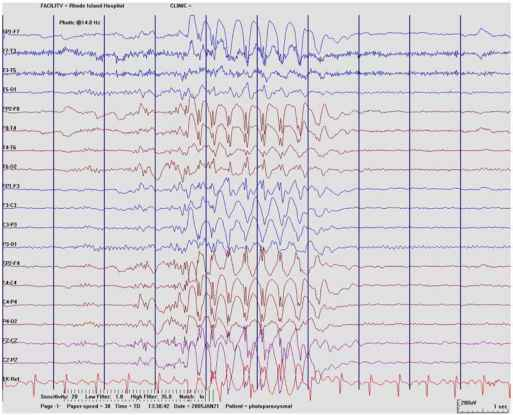 Photic Convulsive Response Eeg