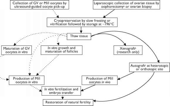 Oocytes Cryopreserve