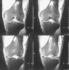 Distal Femoral Stress Fracture