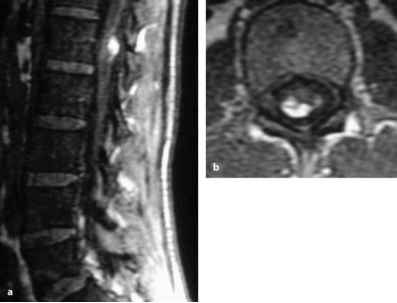 White Spot Spinal Cord Near
