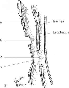 Cervical Esophagostomy