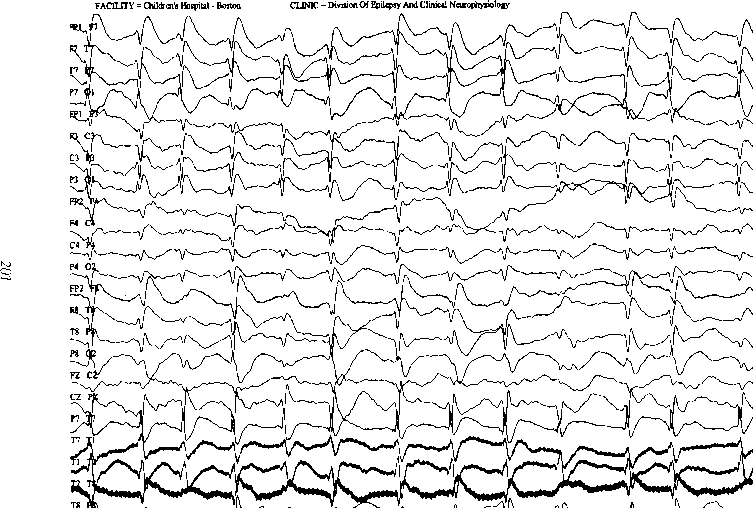 Continuous Spike And Wave During Sleep