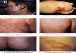 Systemic Bacterial Infection Pictures