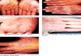 Hyperpigmentation Due Tinea Pictures