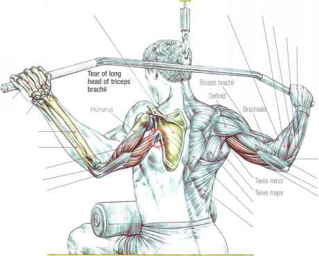 Triceps brachii tears - Strength Training - Euroform Healthcare