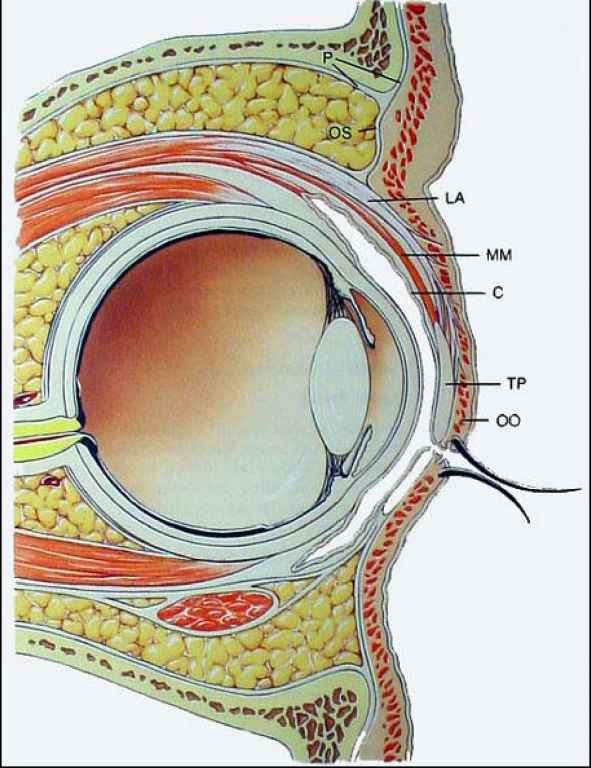 Surgical Anatomy Upper Eyelid Temporalis Fascia