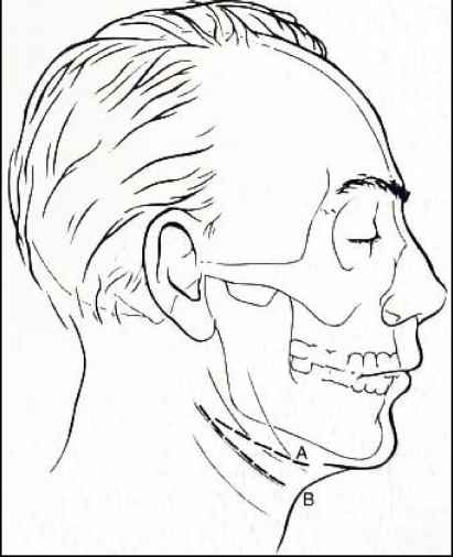 Submandibular Incision
