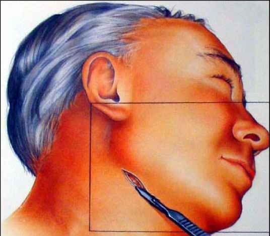 Step 4 Incising the Platysma Muscle - Temporalis Fascia