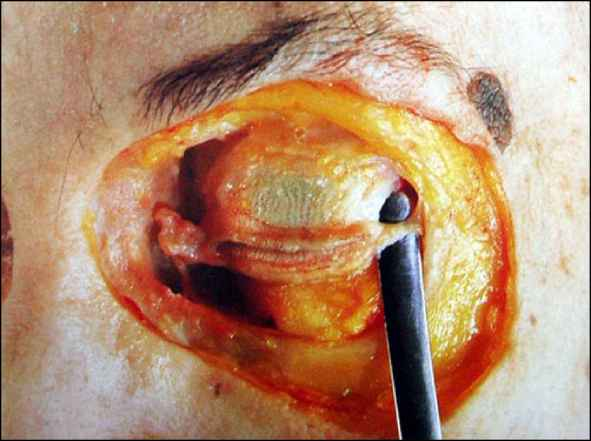 Lateral Canthal Tendon Temporalis Fascia Euroform Healthcare